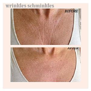 Wrinkles Schminkles Chest Compare