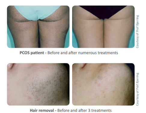 pcos hair removal