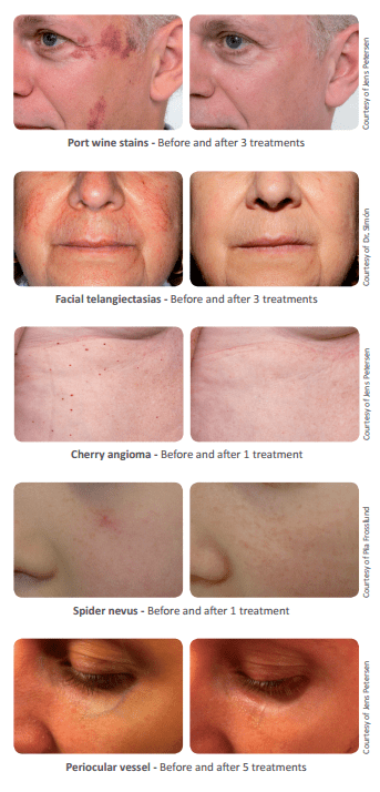 port wine skin stain removal with IPL