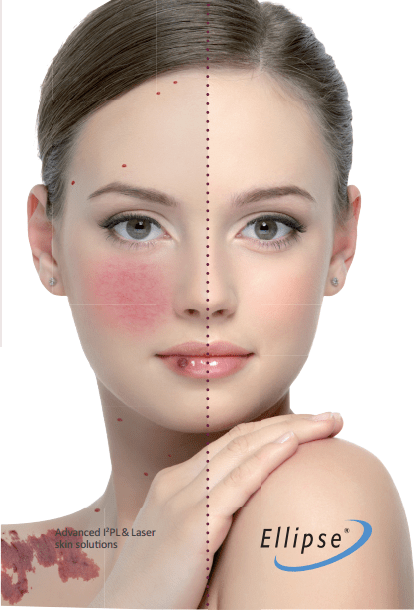 vascular IPL treatment