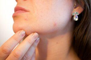 acne-chin