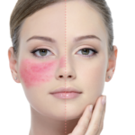 Rosacea – Best makeup tips