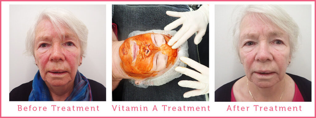 Rosacea Ronnie Before and After