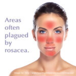 rosacea areas