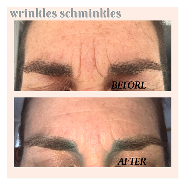 Wrinkles Schminkles Forehead Compare