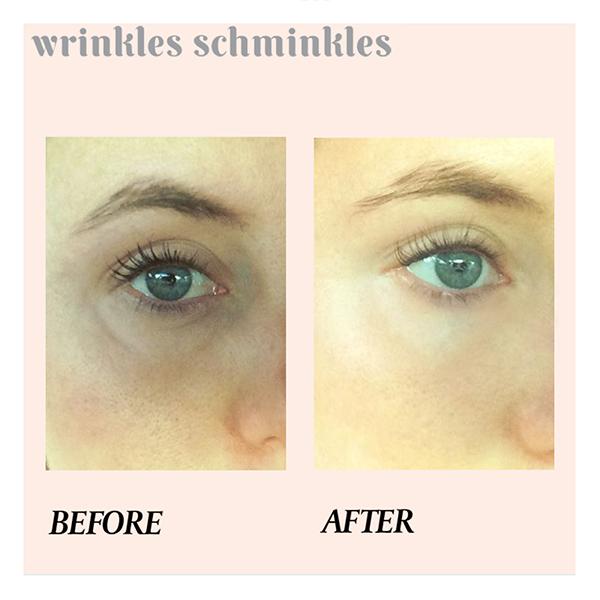 Wrinkles Schminkles Eye Compare