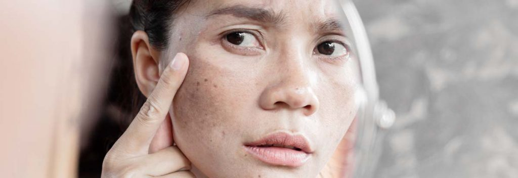 Treating Uneven Skin Tone Melasma