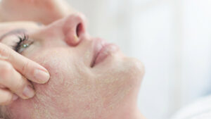 Medi-Facials and Hydra-Facials