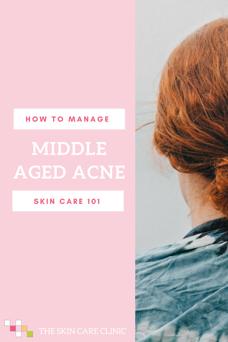 How to Manage Aged in Middle Age