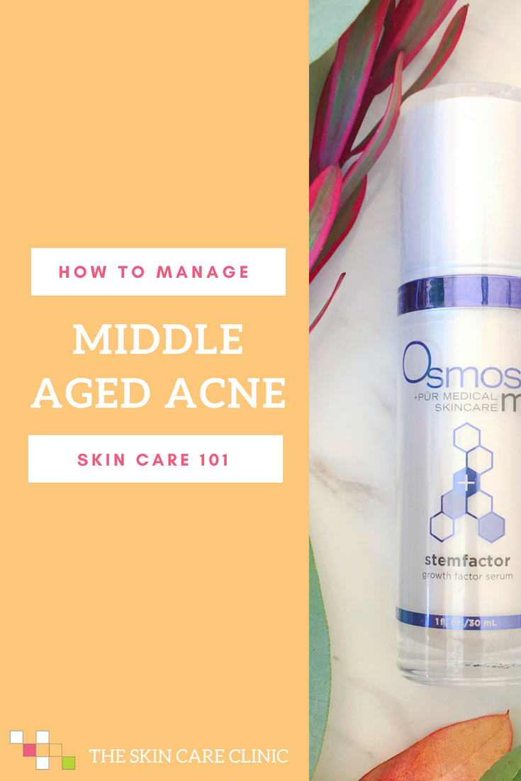 How to Manage Middle Aged Acne