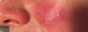 Rosacea or Redness Client