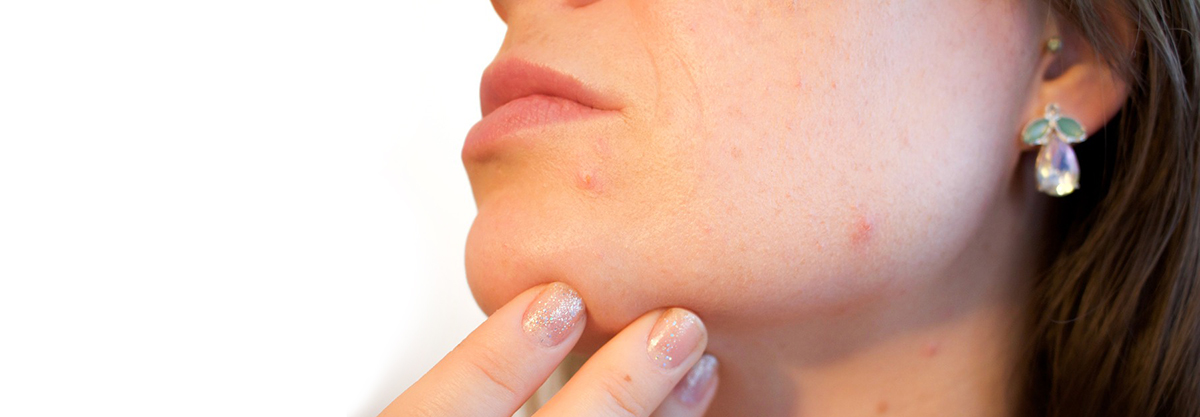 Acne Picking at your skin