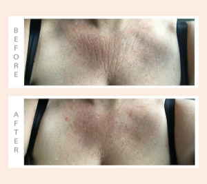 Wrinkles Schminkles Before After Chest