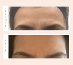Wrinkles Schminkles Before After Forehead