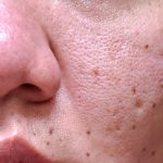 Enlarged Pores Tips