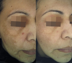 Cosmelan Depigmenting Treatment Before After