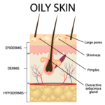 Oily Skin Diagram