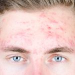 Acne Forehead Osmosis Face Mapping